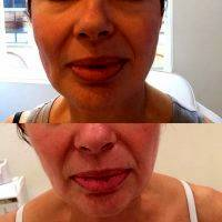 Before And After Photos Of One Stitch Facelift (10)