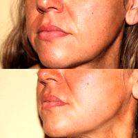 Before And After Photos Of One Stitch Facelift (13)
