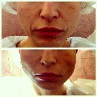 Before And After Photos Of One Stitch Facelift (2)