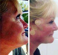 Before And After Photos Of One Stitch Facelift (3)