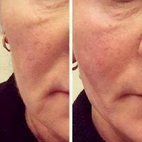 Before And After Photos Of One Stitch Facelift (4)
