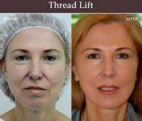 Before And After Photos Of One Stitch Facelift (5)