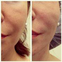 Before And After Photos Of One Stitch Facelift (6)