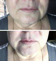 Before And After Photos Of One Stitch Facelift (7)