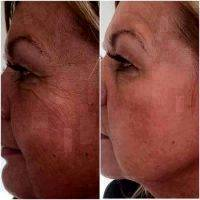 Before And After Surgical Removal Of Wrinkles