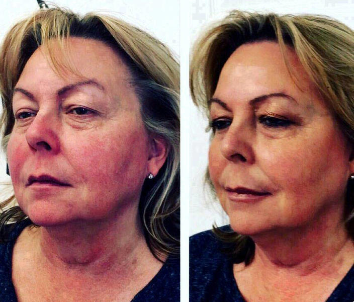 Befre And After Non Surgical Facelift