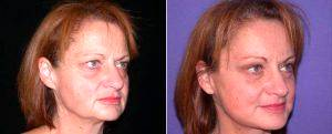 Browlift, Facelift, Blepharoplasty By Doctor Shahram Salemy, MD, FACS, Seattle Plastic Surgeon