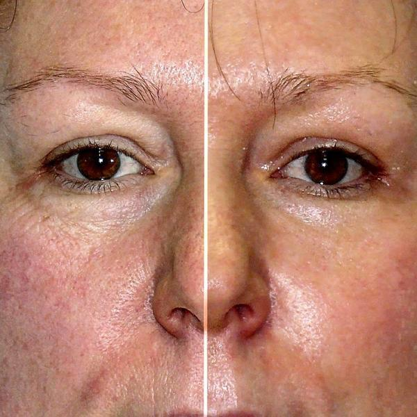 Co2 Laser Resurfacing Treatment Before And After 2 Weeks