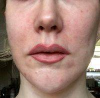Cosmetic Procedures For Face With Dr. James M. Ridgway