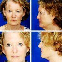 Deep Plane Facelift Before And After Pic