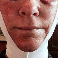 Doctor Carmen Munteanu Jowls Facelift Recovery
