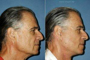 Doctor Daniel Shapiro, MD, Scottsdale Plastic Surgeon - Facelift