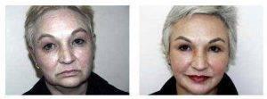 Doctor David L. Abramson, MD, New York Plastic Surgeon - Facelift
