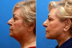 Doctor Frank P. Fechner, MD, Worcester Facial Plastic Surgeon - Face And Neck Lift With Facial Fat Injections