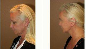 Doctor Gregory Turowski, MD, PhD, FACS, Chicago Plastic Surgeon - 53 Year Old Woman Treated With Facelift