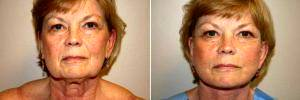 Doctor Jeffrey M. Darrow, MD, Boston Plastic Surgeon - Facelift With SMASectomy