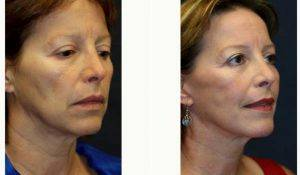 Doctor Kris M. Reddy, MD, FACS, West Palm Beach Plastic Surgeon - 52 Year Old Woman Treated With Facelift