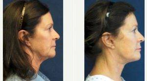 Doctor Marshall T. Partington, MD, FACS, Seattle Plastic Surgeon - 56 Year Old Woman Treated With Facelift