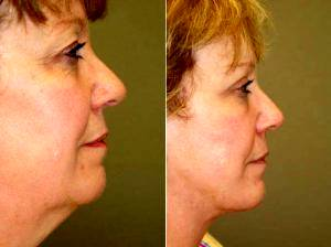 Doctor Michael A. Epstein, MD, FACS, Chicago Plastic Surgeon - Facelift, Liposuction Of The Neck, Upper Eyelid Lift