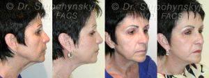 Doctor Oleh Slupchynskyj, MD, FACS, New York Facial Plastic Surgeon - Sluplift- Mini Neck Jowl Lift