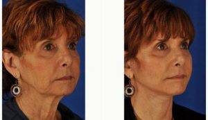 Doctor Peter D. Geldner, MD, Chicago Plastic Surgeon - 62 Year-old Woman Desired Facelift And Open Necklift