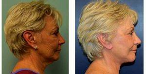 Doctor Richard G. Reish, MD, New York Plastic Surgeon - 65 Year Old Woman Treated With Facelift