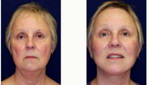 Doctor Robert J .Paresi Jr., MD, MPH, Chicago Plastic Surgeon - 55 Year Old Woman Treated With Facelift