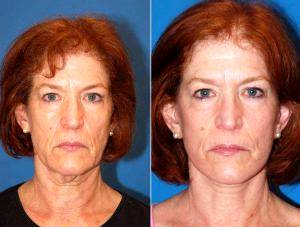 Doctor Ross A. Clevens, MD, Melbourne Facial Plastic Surgeon - Facelift