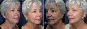 Doctor Scott C. Sattler, MD, FACS, Seattle Plastic Surgeon - 60 Year Old Woman Treated With Facelift