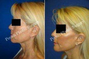Doctor Tom J. Pousti, MD, FACS, San Diego Plastic Surgeon - Face Lift, Forehead Lift, Neck Lift