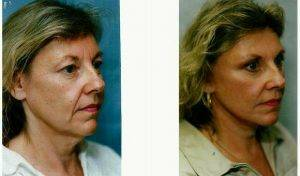 Dr Elliot M. Heller, MD, New York Facial Plastic Surgeon - 53 Year Old Woman Treated With Facelift