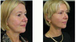 Dr George Volpe, MD, Newton Plastic Surgeon - Facelift