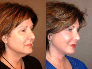 Dr Gilbert Lee, MD, San Diego Plastic Surgeon - Facelift, Necklift And Blepharoplasty