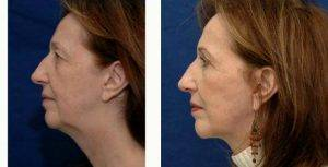 Dr Jeffrey Ditesheim, MD, FACS, Charlotte Plastic Surgeon - 56 Year Old Woman Treated With Facelift