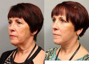 Dr Jordan Jacobs, MD, New York Plastic Surgeon - 58 Year Old Female Who Desired Rejuvenated Appearance, Facelift Surgery