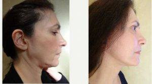 Dr Joseph M. Pober, MD, FACS, New York Plastic Surgeon - 47 Year Old Woman Treated With Facelift