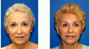 Dr Kara K. Criswell, MD, FACS, Charlotte Plastic Surgeon - 66 Year Old Woman Treated With Facelift