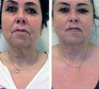 Dr Konstantin Vasyukevich Plastic Surgery Face Lift Before And After