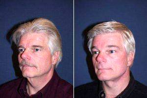 Dr M. Sean Freeman, MD, Charlotte Facial Plastic Surgeon - 62 Year Old Male With Facelift And Brow Lift