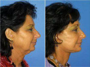 Dr Philip J. Miller, MD, FACS, New York Facial Plastic Surgeon - Facelift, Chin Implant