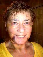 Dr Richard J. Brown Cosmetic Surgery Facelift Result Picture