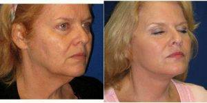 Dr. Dilip D. Madnani, MD, FACS, New York Facial Plastic Surgeon - 68 Year Old Woman Treated With Facelift