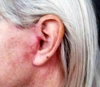 Dr. Gaurav Bharti Facial Cosmetic Surgery Scar Photos