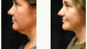 Dr. George Volpe, MD, Newton Plastic Surgeon - Facelift Addressing Neck Concerns