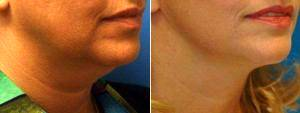 Dr. George Yang, MD, New York Facial Plastic Surgeon - Lower Facelift With Submental Liposuction (Liposuction Under The Chin)