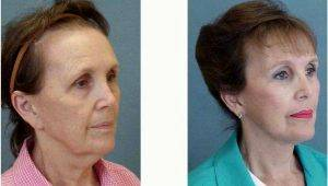 Dr. Gustavo A. Diaz, MD, Charlotte Facial Plastic Surgeon - 65 Year Old Woman Treated With Facelift