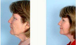 Dr. Wayne F. Larrabee, MD, Seattle Facial Plastic Surgeon - 63 Year Old Woman Treated With Facelift