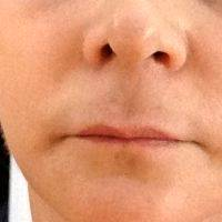 Dr. William Portuese Face Lift Patient Results