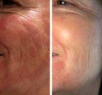 Endymed Facelift Before And After
