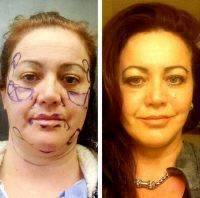 Excess Fat Is Removed During Facelft